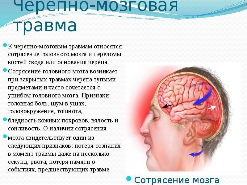 Сотрясение головного мозга — большая медицинская энциклопедия