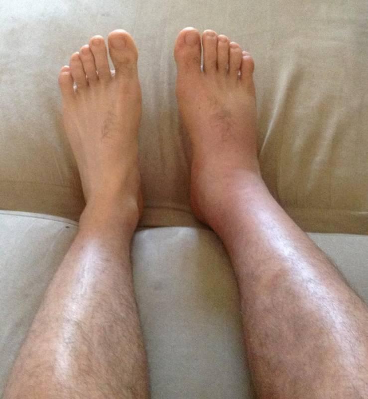 Отеки ног: причины и как убрать отеки на ногах? | anacosma