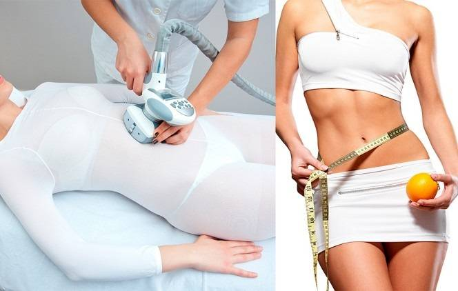 Похудение и коррекция фигуры: уникальная программа похудения!