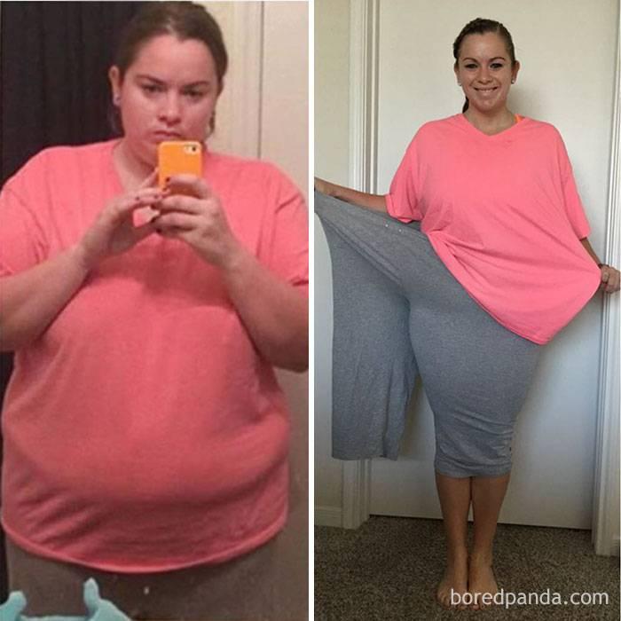 Что вызывает быстрое увеличение веса? - medical insider