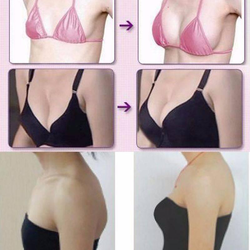 Как уменьшить грудные железы? как уменьшить размер грудных желез в домашних условиях: отзывы