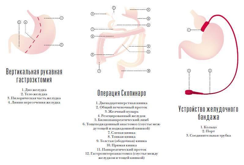 Бариатрическая хирургия – мировой стандарт борьбы с морбидным ожирением