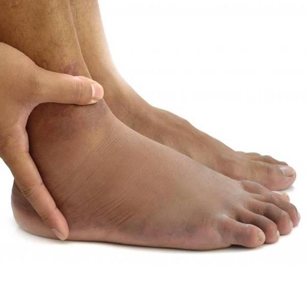 Причины отеков ног и что с этим делать