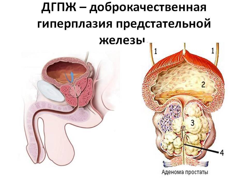 Что такое аденома предстательной железы у мужчин и каковы причины ее возникновения: методы лечения