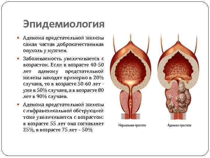 Простатит: виды, причины, диагностика и лечение простатита у мужчин в нии эпидемологии