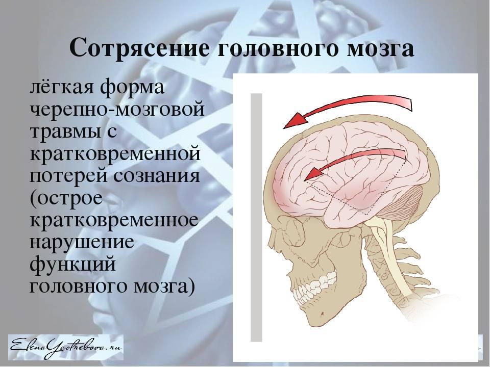 Сотрясение мозга — википедия. что такое сотрясение мозга