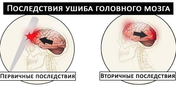 Сотрясение мозга - какие могут быть последствия