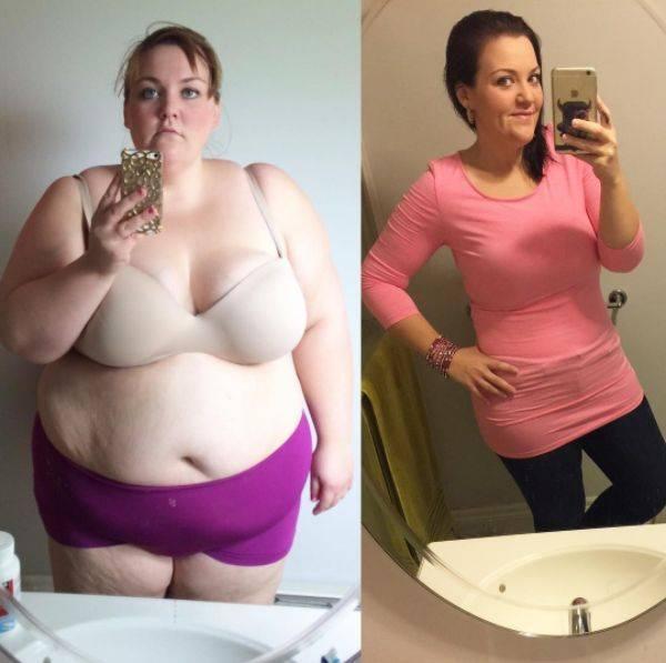 Повторные операции в хирургическом лечении ожирения и сахарного диабета 2 типа