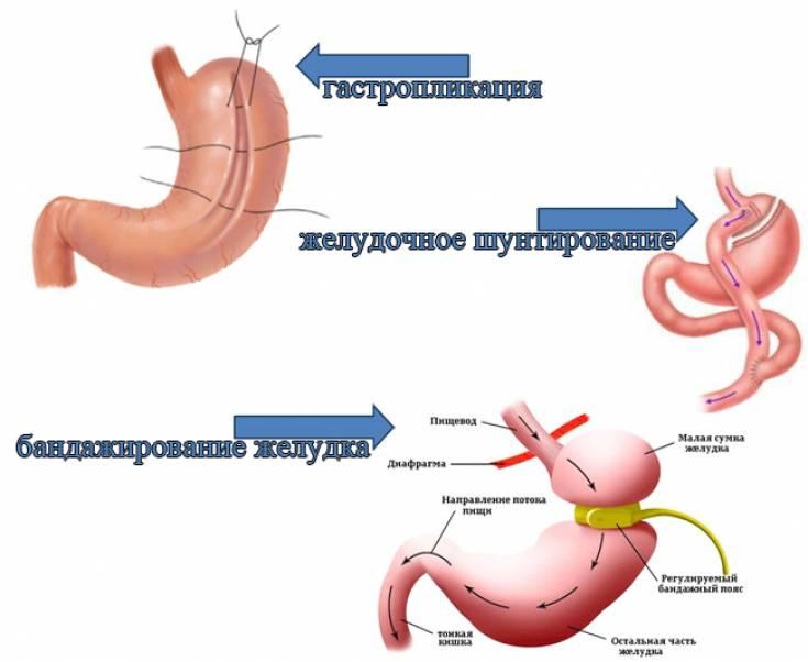 Служба «хирургия ожирения» — центр бариатрических и метаболических операций