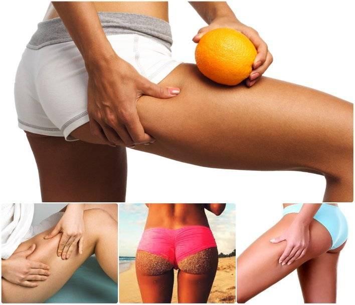 Эффективыне упражнения от целлюлита на ногах и попе: комплексы для тренировки в домашних условиях
