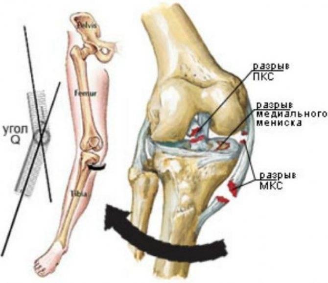 Травмы связок колена: виды повреждений и способы реабилитации
