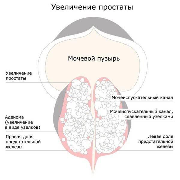 Лечение простатита (воспаление простаты) у мужчин