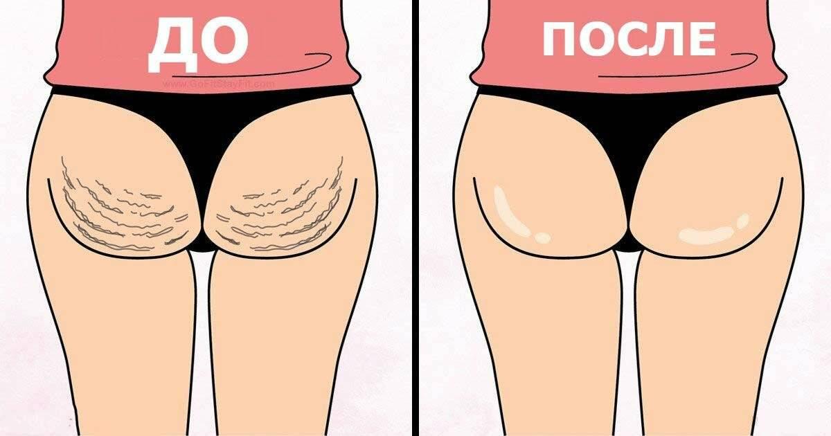 Как убрать жир под ягодицами женщине и мужчине