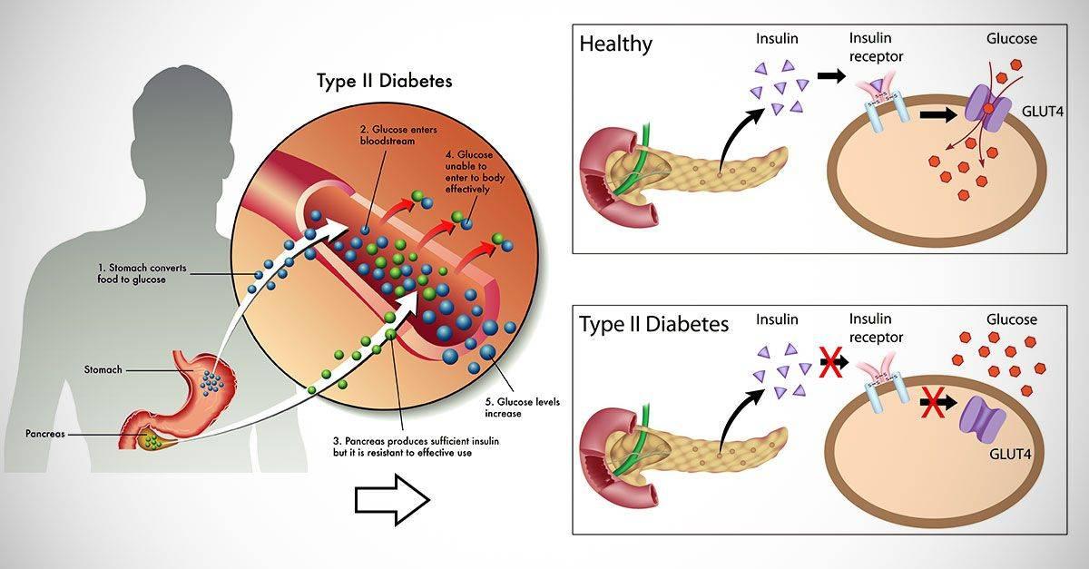 Ожирение.  медикаментозное похудение.