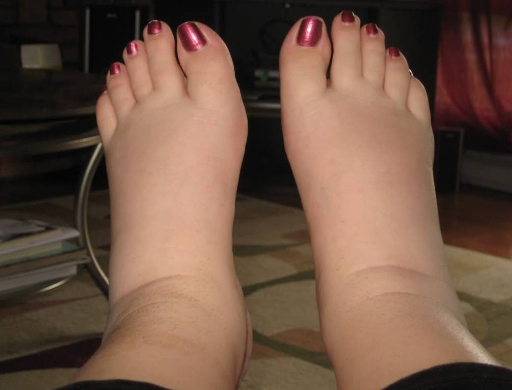 Лимфостаз нижних конечностей: чем грозят отеки ног?