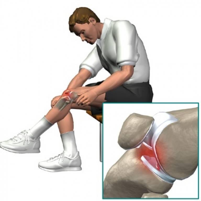 Повреждение пкс - лечение и реабилитация разрыва передней крестообразной связки. причины. симптомы. группы риска.