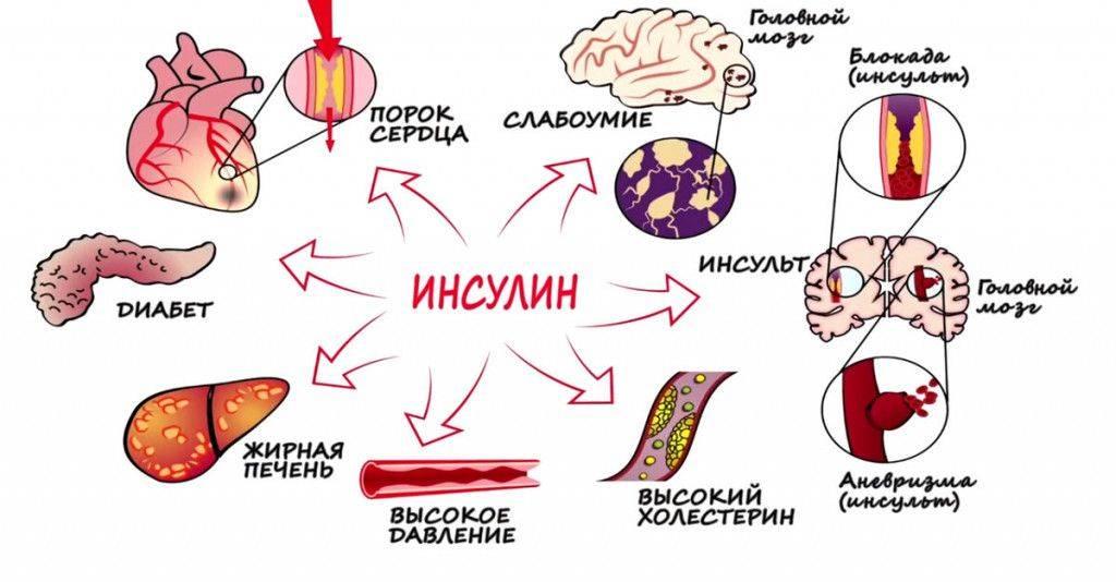 Гиперинсулинемия: как развивается резистентность к инсулину