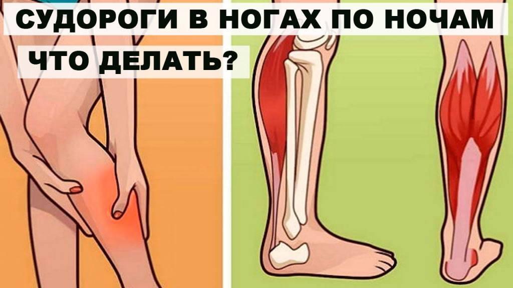 Сводит ноги: первая помощь, лечение, диета