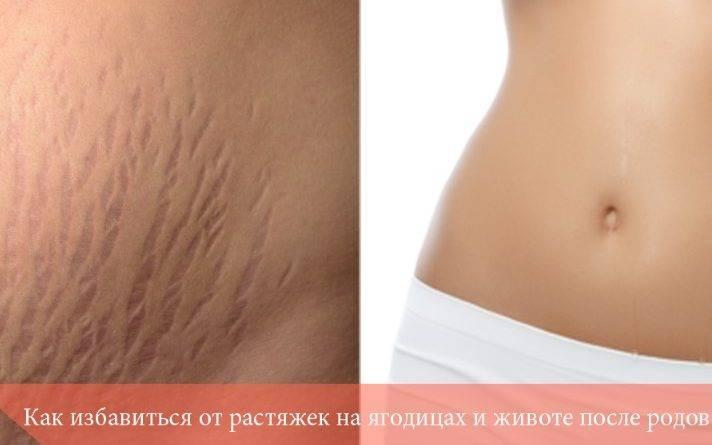 Выведение шлаков и токсинов из организма. фитомуцил сорбент.