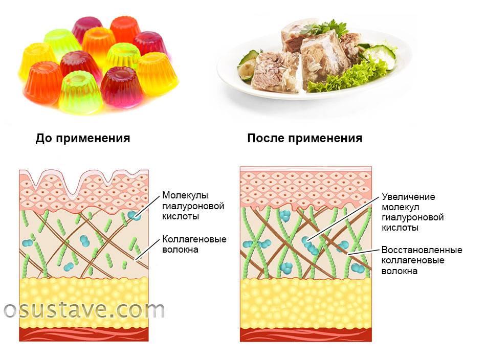 Что эффективнее: гидролизованный коллаген или желатин?