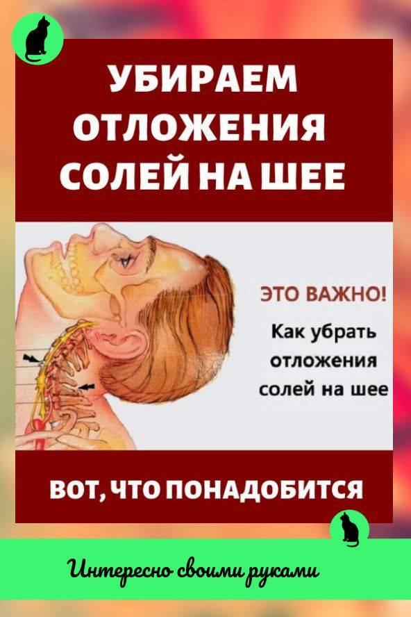 Остеофиты позвоночника - лечение, симптомы, причины, диагностика | центр дикуля
