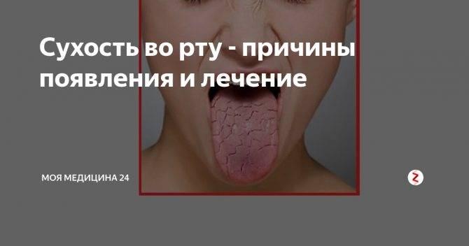 Горечь во рту: почему возникает, какие болезни скрывает и как ее лечить