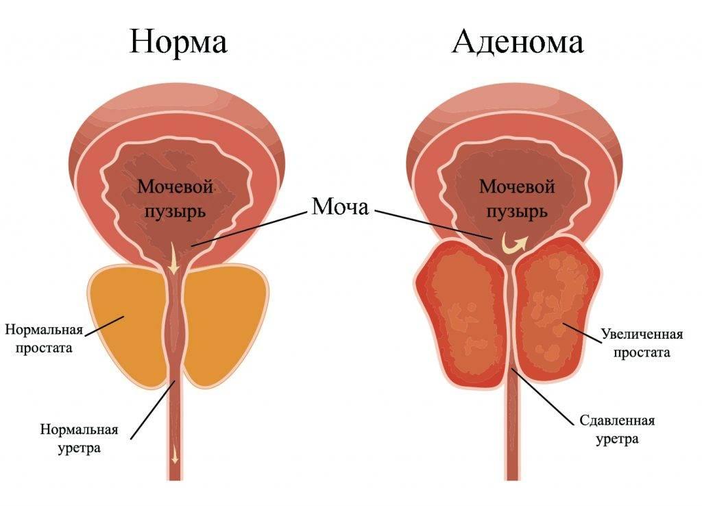 Простатит - симптомы и лечение простатита