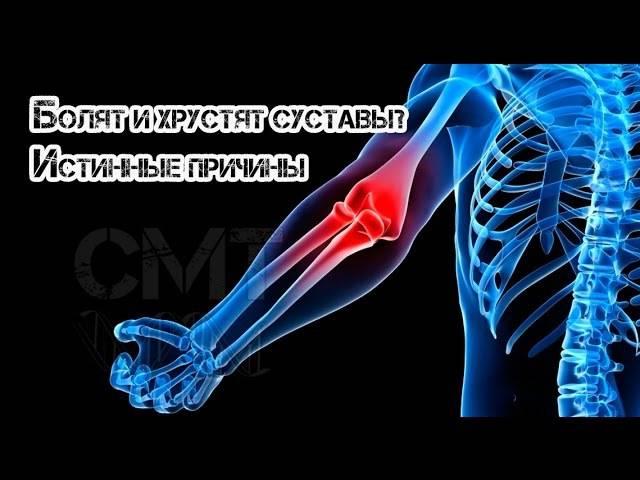 Деформирующий остеоартроз: можно ли остановить разрушение хряща?