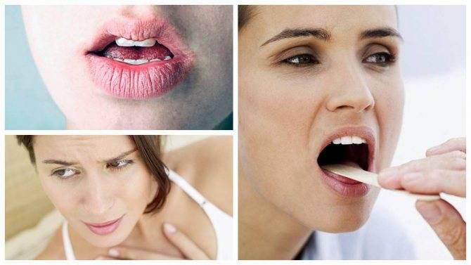 Горечь во рту. причины и лечение горечи во рту