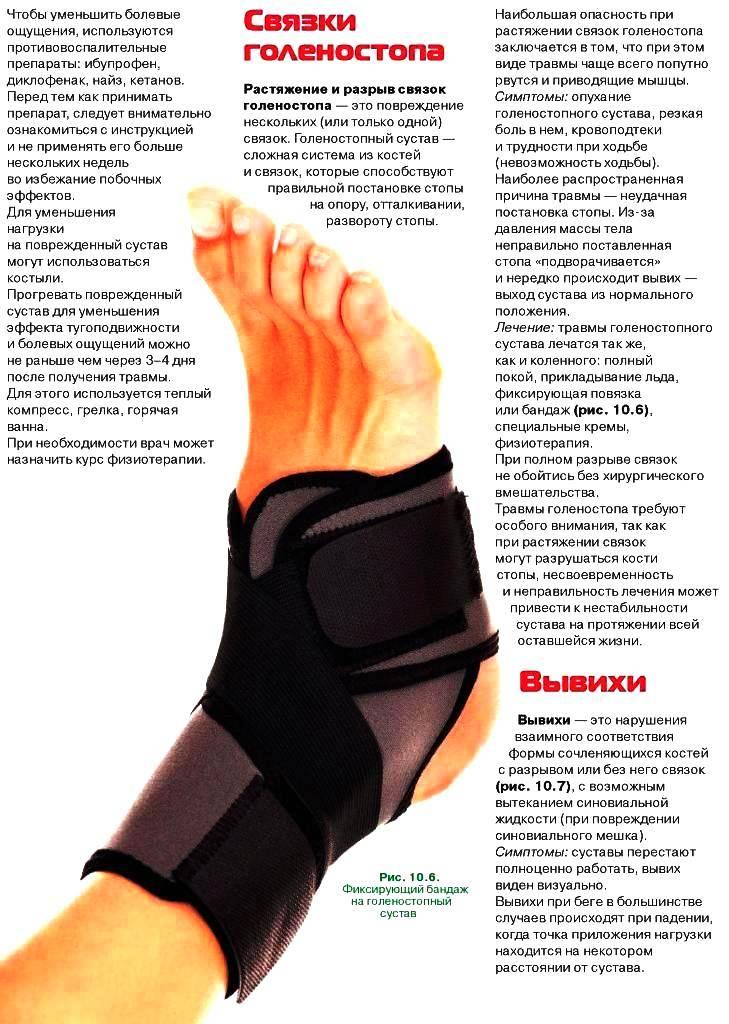 Растяжение связок. причины и лечение | medi