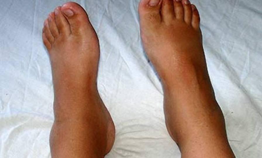 Отекают ноги - лечение. 14 народных средств. причины отека ног