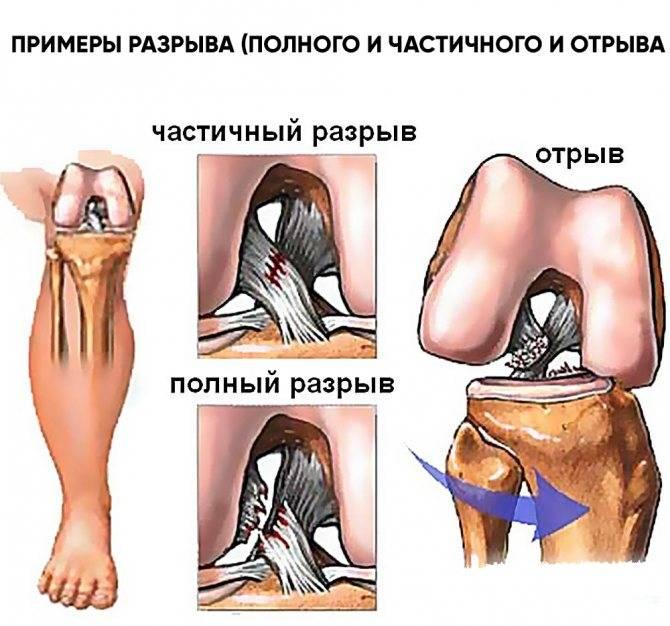 Частичный разрыв передней крестообразной связки и рубцевание   sustav.pro