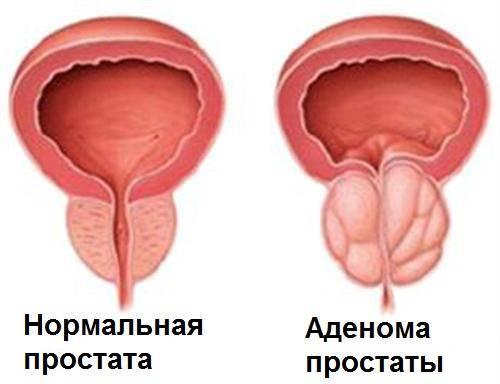 Болезни простаты – аденома и простатит. не запускайте патологию