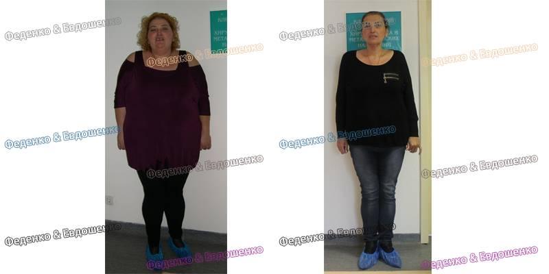«чума 21 века». бариатрический хирург – о проблеме ожирения | здоровье: медицина | здоровье | аиф тюмень