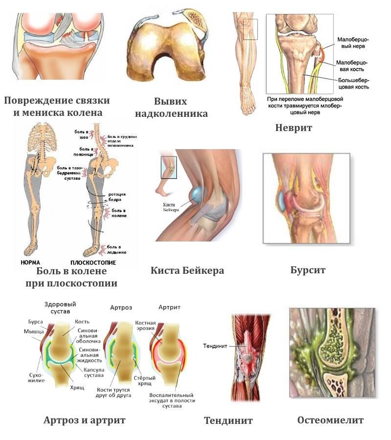 Боль в суставах рук | по какой причине болят суставы рук и что делать? | компетентно о здоровье на ilive