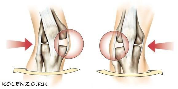 Растяжение сухожилий, связок, мышц, суставов: лечение растяжения и первая помощь – напоправку