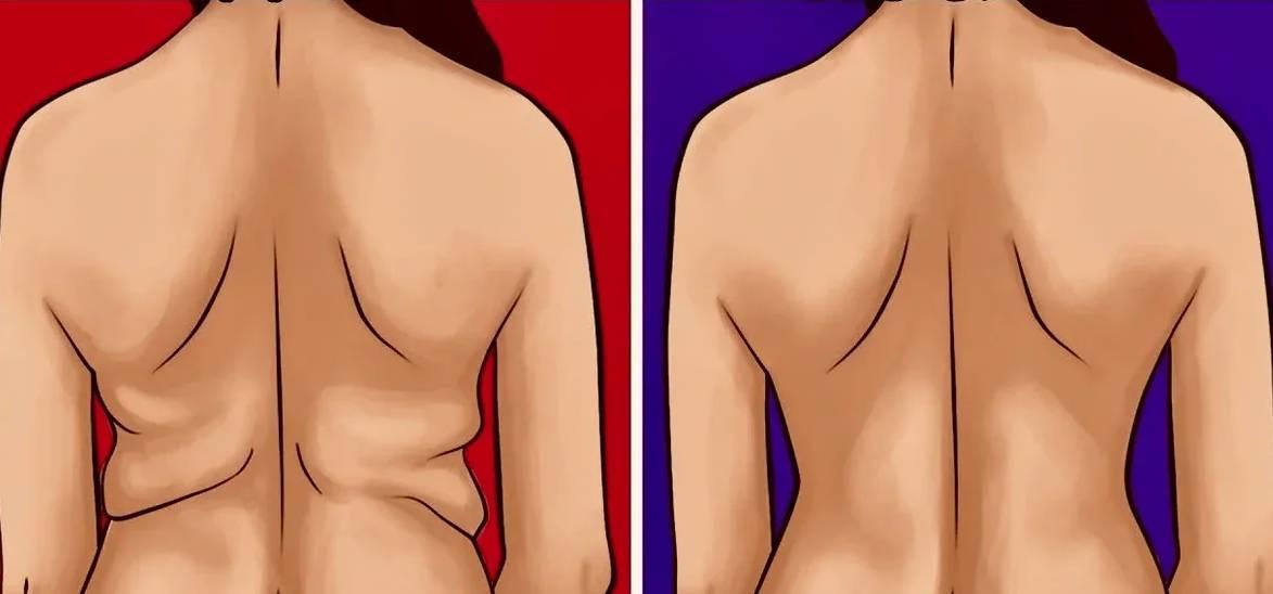 Как убрать жир со спины — диета и комплекс упражнений