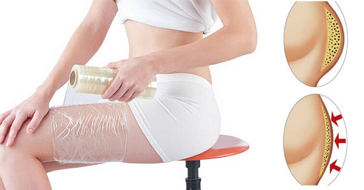 Как убрать целлюлит: топ 10 салонных методов лечения целлюлита