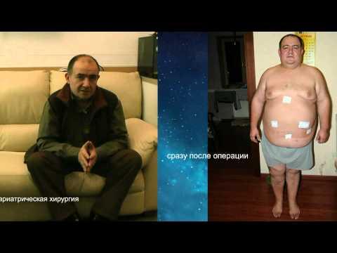 «чума 21 века». бариатрический хирург – о проблеме ожирения