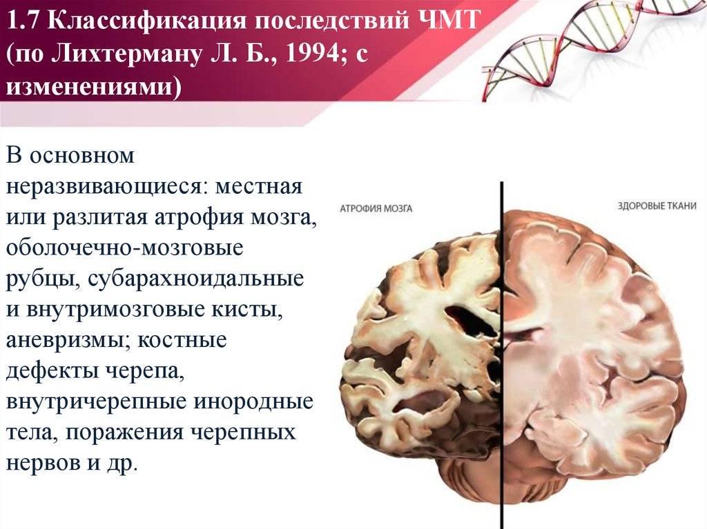 Сотрясение мозга: симптомы | компетентно о здоровье на ilive