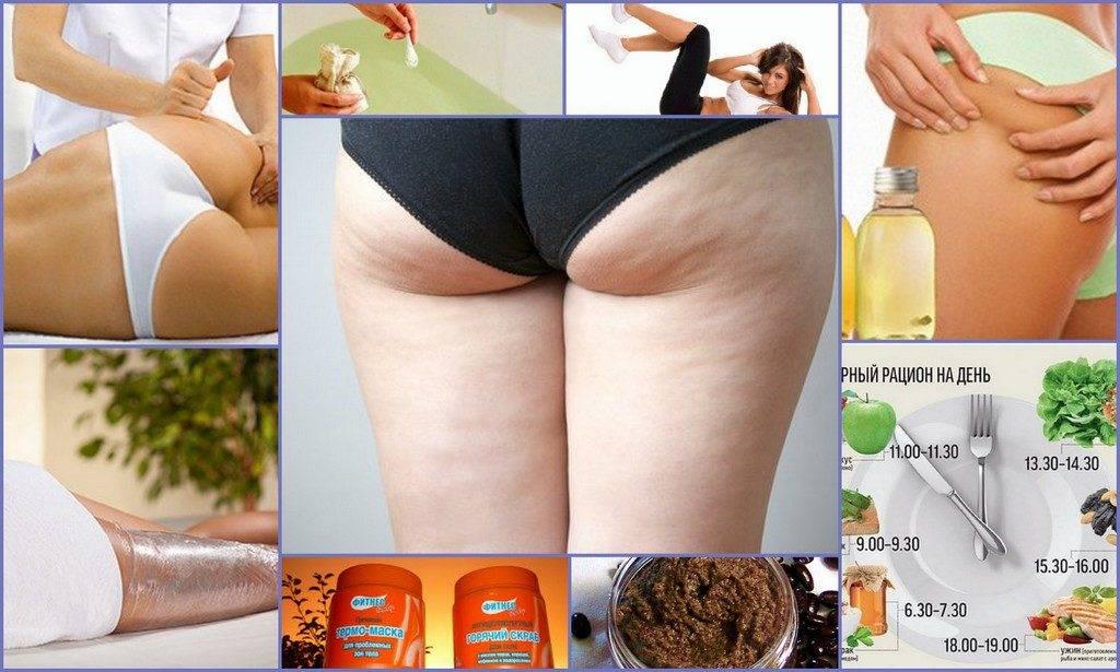 Упражнения от целлюлита на ногах, попе, животе и боках