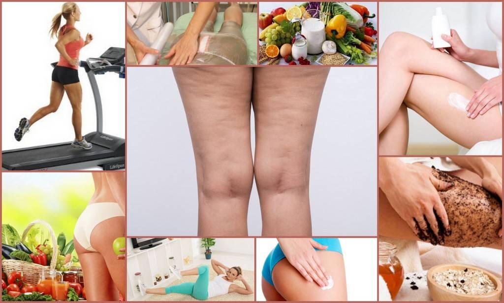7 эффективных способов, как избавиться от целлюлита в домашних условиях