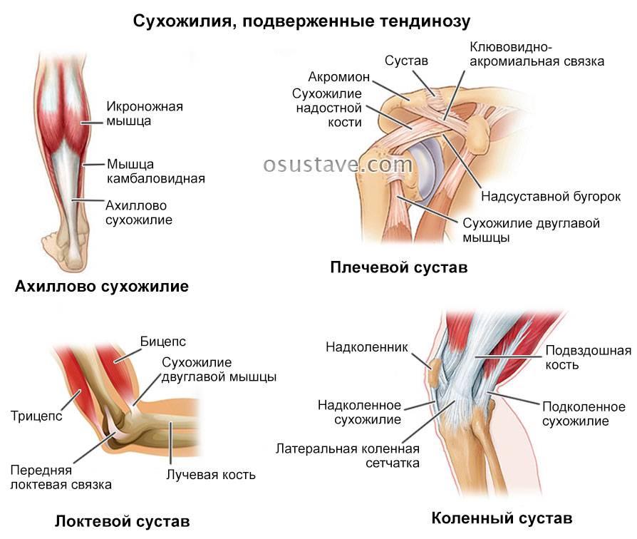 Надрыв связок колена – частичный разрыв связок коленного сустава: лечение обязательно?