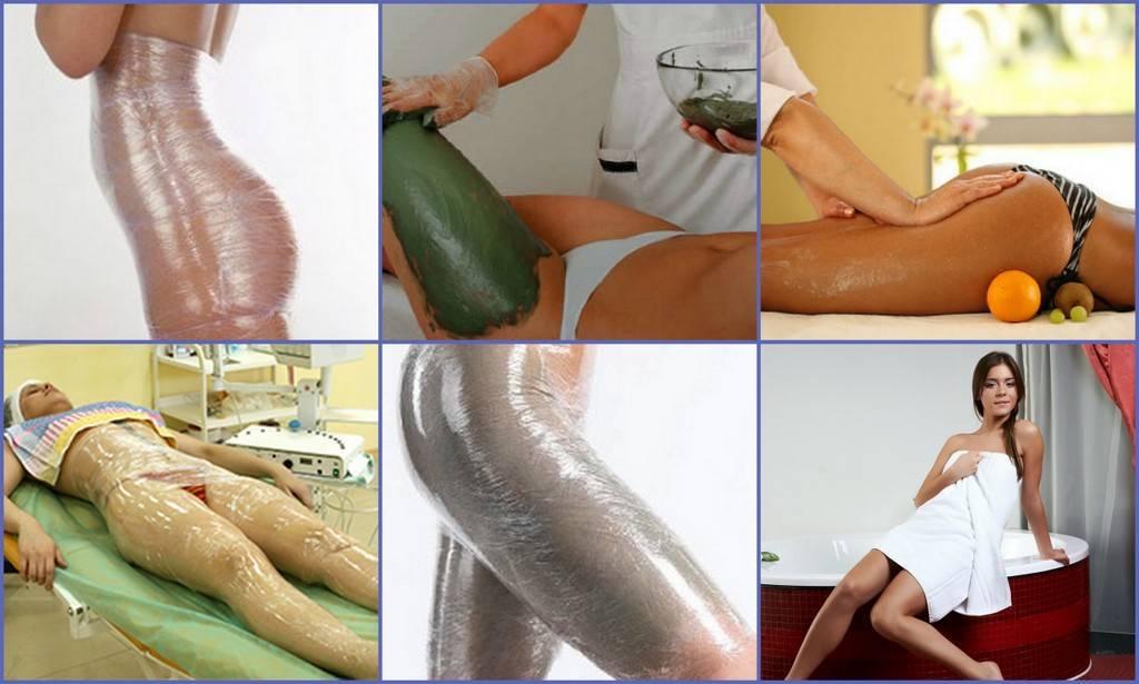 Обертывание для похудения в домашних условиях: 5 лучших рецептов средств для обертывания тела