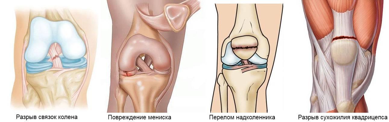 Повреждения задней крестообразной связки: причины, симптомы, диагностика, лечение   компетентно о здоровье на ilive