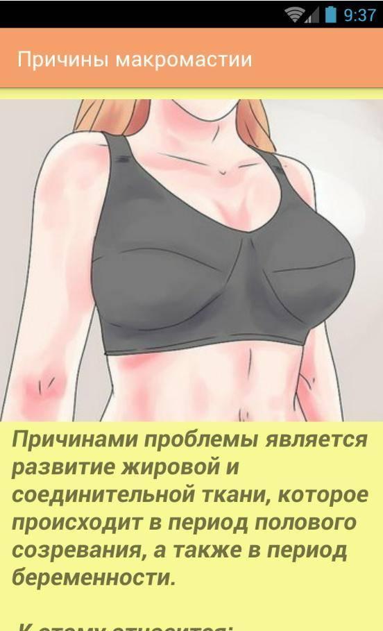 Упражнения для уменьшения размера груди у женщин
