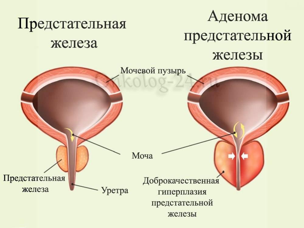 Гиперплазия предстательной железы: болезнь или состояние? * клиника диана в санкт-петербурге