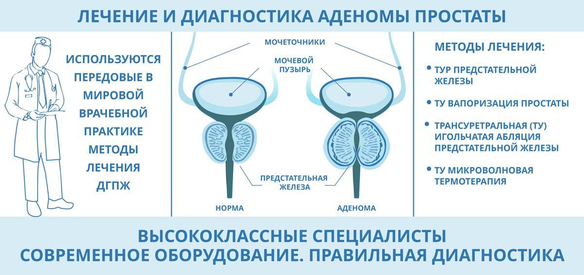 Простатит, симптомы, лечение у мужчин