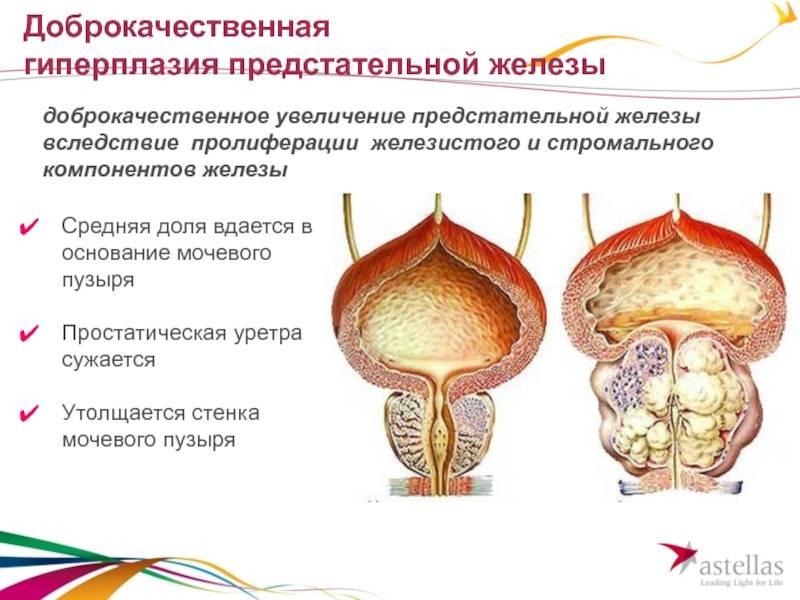 Аденома простаты. комментарий специалиста - причины, диагностика и лечение