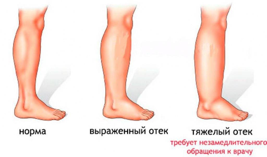 Отёк — чем может быть вызван этот симптом? - цэлт